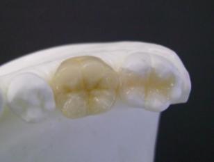 期間限定価格・金属を白い歯に。セラミック取替えプラン