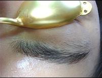 人気の眉脱毛の施術前です。