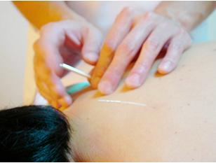 気温の差に早くもバテ気味・未経験でも安心のマッサージと針治療の合わせ技で、体の中からリフレッシュ