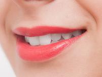 White shine ホワイトシャイン (いえさき歯科併設)のプランイメージ