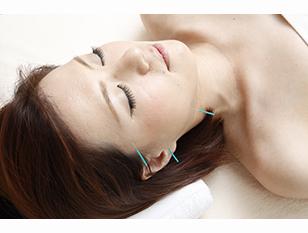美顔鍼灸 + 選べる部分改善鍼灸 「トラコレ限定 オーダーメイドコース 45分」