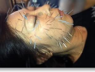 トラコレ限定!「美容鍼灸」の効果を体感、もうたるみ・しわ・くすみで悩まない!健康的な美しさを手に入れませんか?女性鍼灸師で安心美容鍼灸お試し50分コース