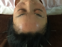 美容鍼灸 鍼は日本製の髪の毛より細い鍼を使用します。