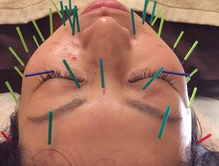 もっとキレイになりたい女性必見!120分美容鍼灸コース!