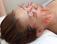 しおかわ鍼灸接骨治療院のプランイメージ