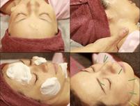 Acu-pa鍼灸院のプランイメージ