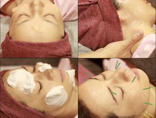 俳優・モデルも多数来店♪+フェイシャルで美容鍼の効果UP【Miyoshi式美容鍼】90分贅沢フルコース☆