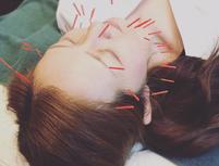 BWO 鍼灸院(ボディワークス大阪)のプランイメージ