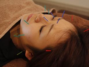 秋の美肌対策☆美容鍼&超音波ケア