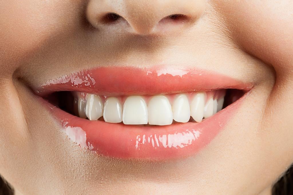 【大人気!】歯のホワイトニング  True White(トゥルーホワイト) のイメージ