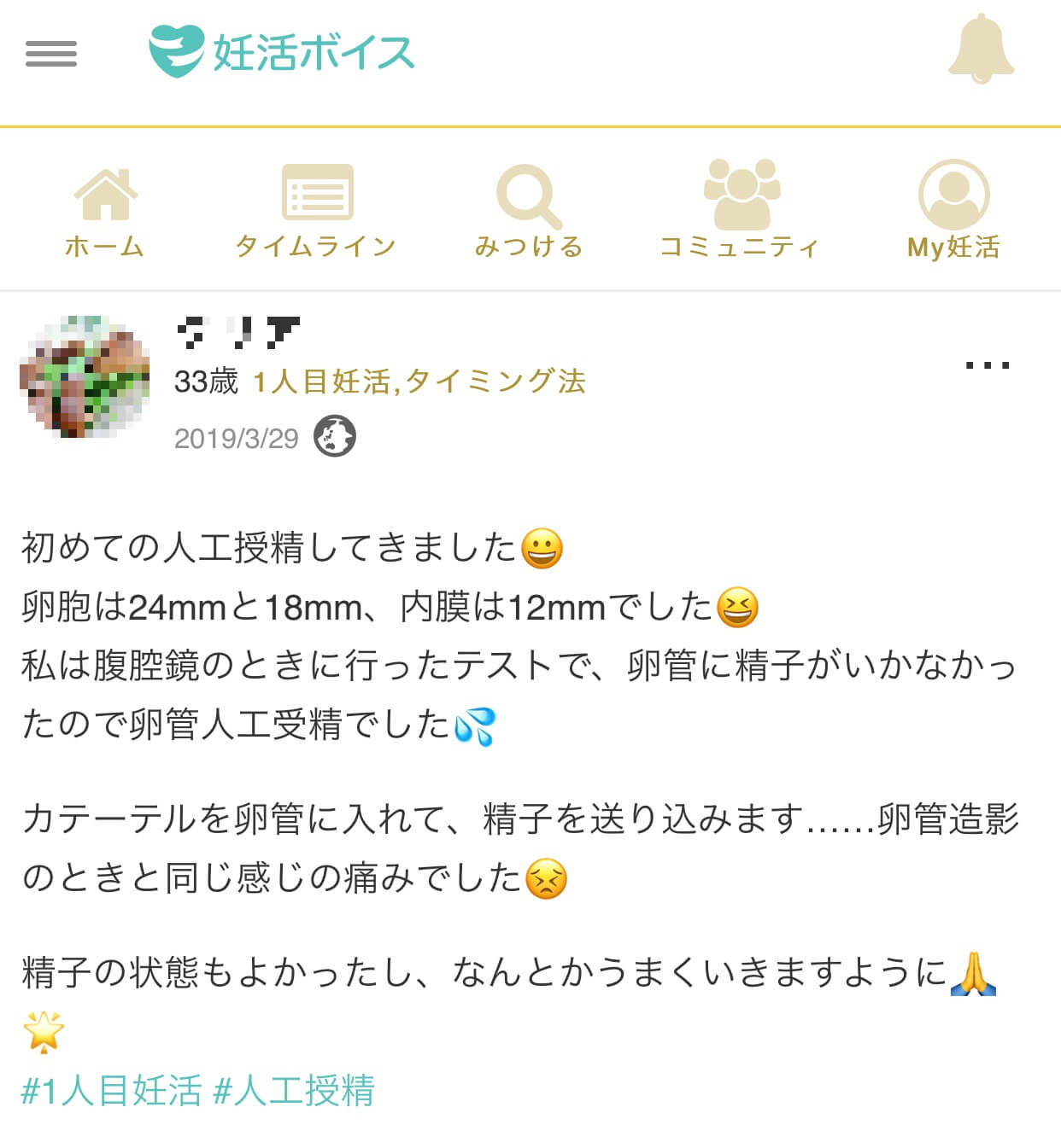 Dさん(33歳・1人目妊活・タイミング法・人工授精)