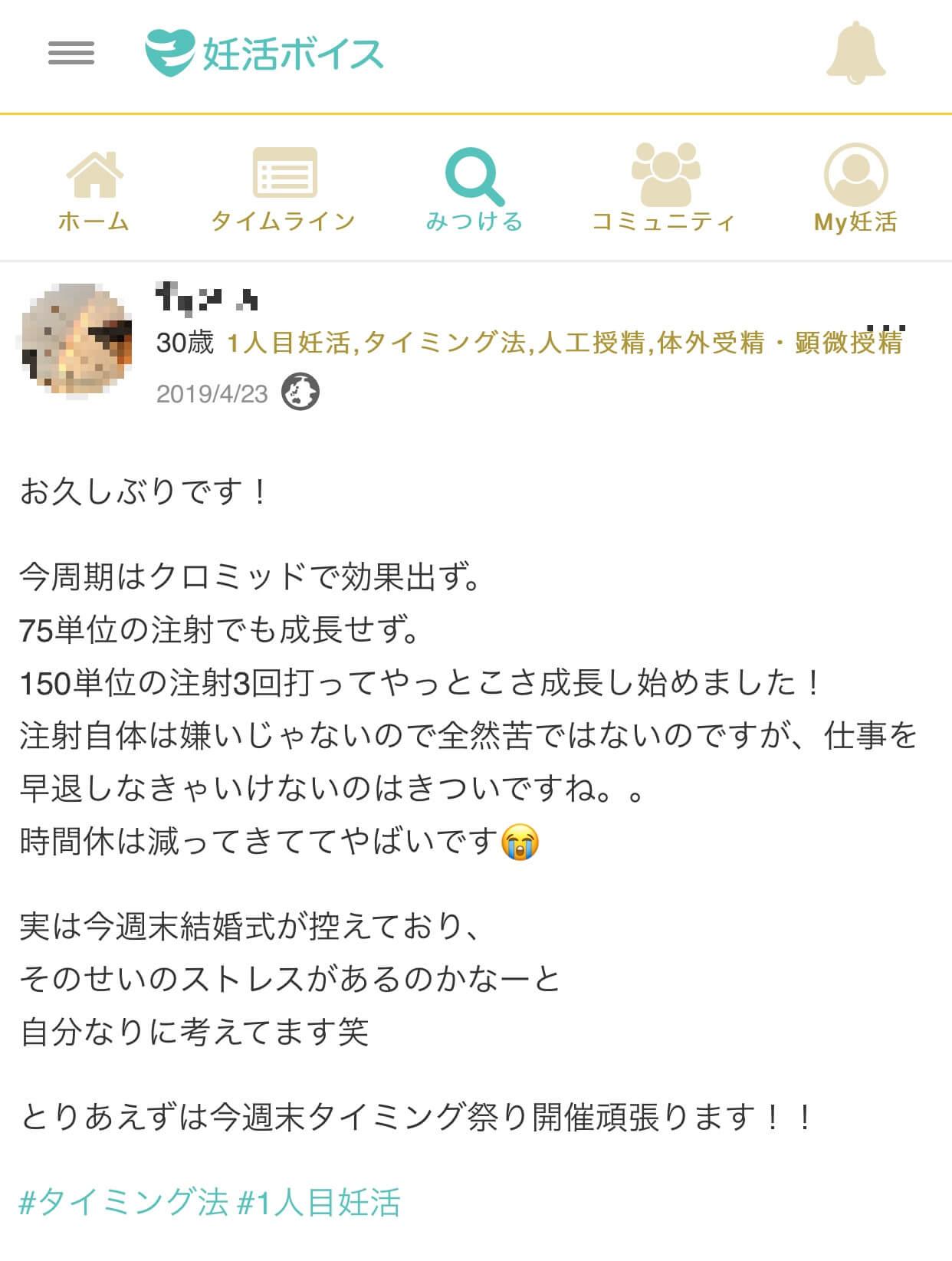 Nさん(30歳・1人目妊活・タイミング法・人工授精・体外受精・顕微授精)