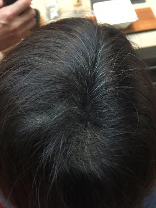 MOTISS魔髮粉-真的好煩惱 我的髮旋很稀疏 該怎麼辦才好