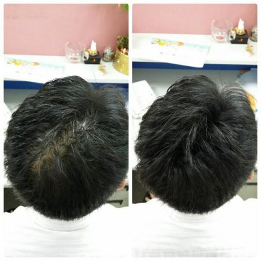 部分頭髮稀疏怎麼辦 沒關係MOTISS魔髮粉來幫您