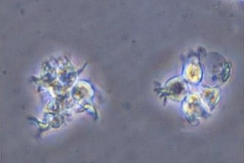 (Dendritic cells obtained from iPS cells, provided by Wakayama Medical University)