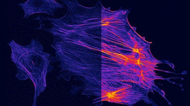 励起光による生細胞へのダメージを抑えて繊細な試料も共焦点の解像度で捉えよう