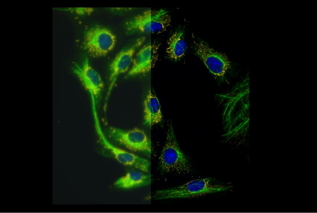 染色した培養ベロ細胞 超高精細蛍光顕微鏡観察