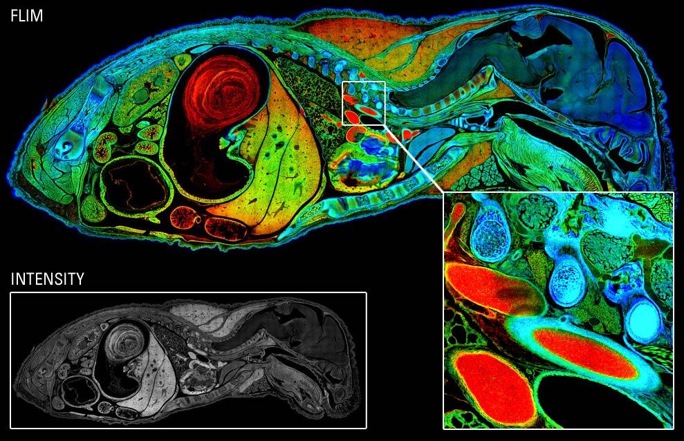 蛍光寿命イメージングとデジタルイメージングに革命を起こしたライカの先進技術活用事例 学会ランチョンセミナー3選