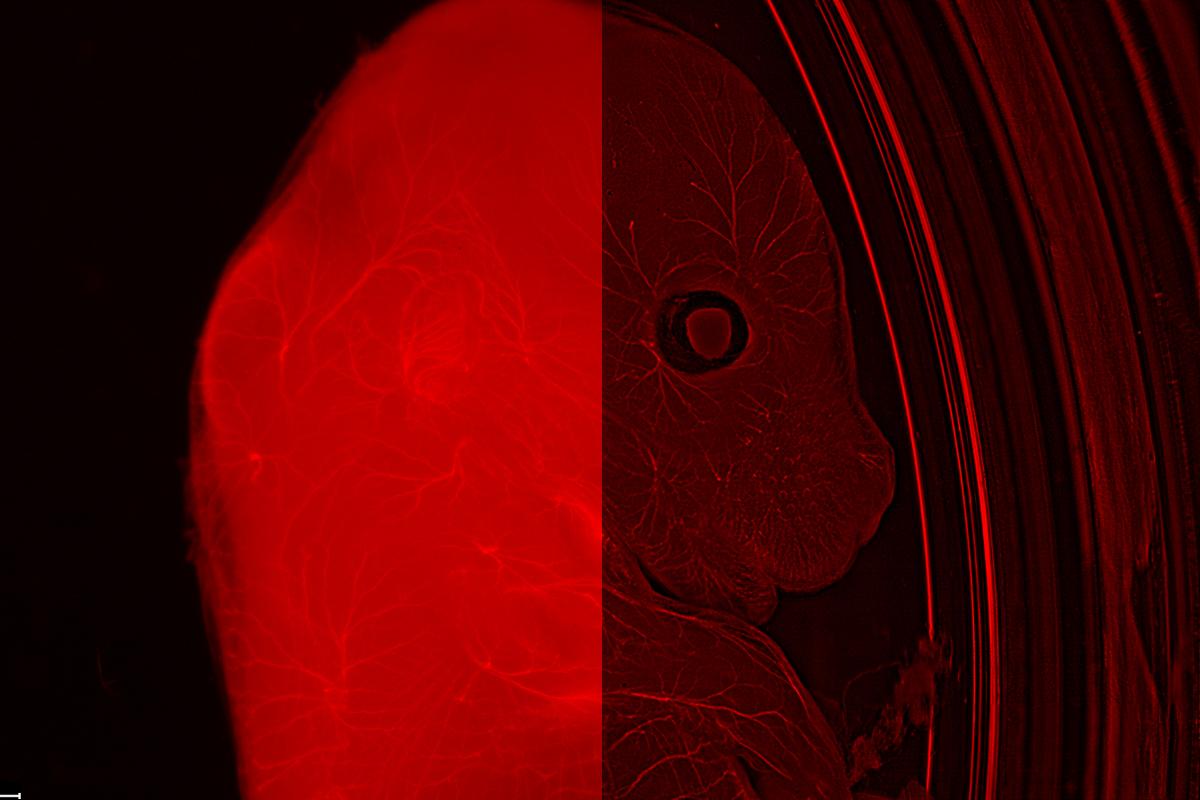 マウスエンブリオ 超高精細蛍光顕微鏡観察