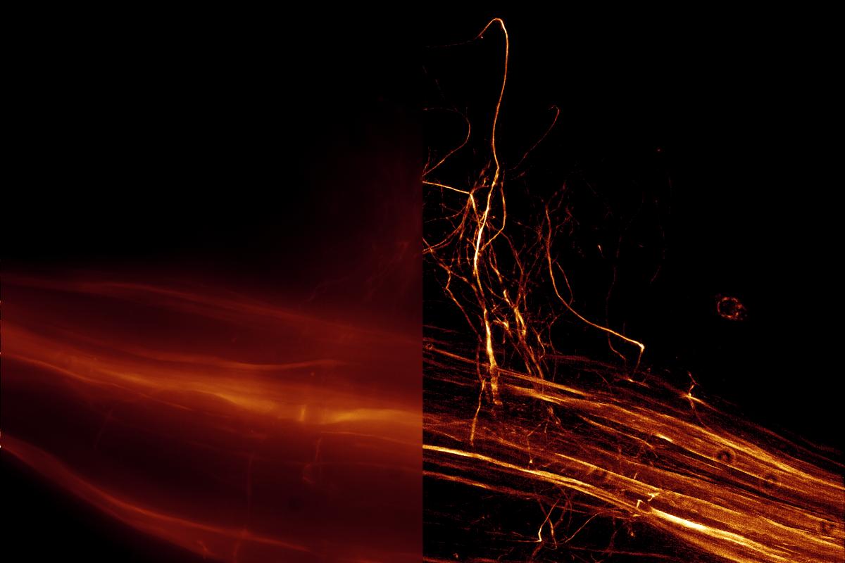 (申込受付終了)顕微鏡デジタルイメージングと蛍光寿命イメージングの最新技術を学ぶセミナー&ワークショップ