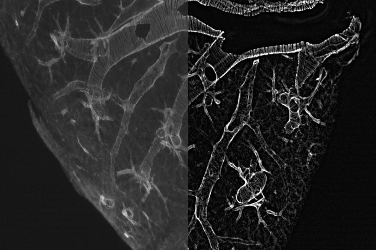 血管周囲の平滑筋 超高精細蛍光顕微鏡観察