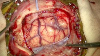 写真1 脳腫瘍(正常脳)