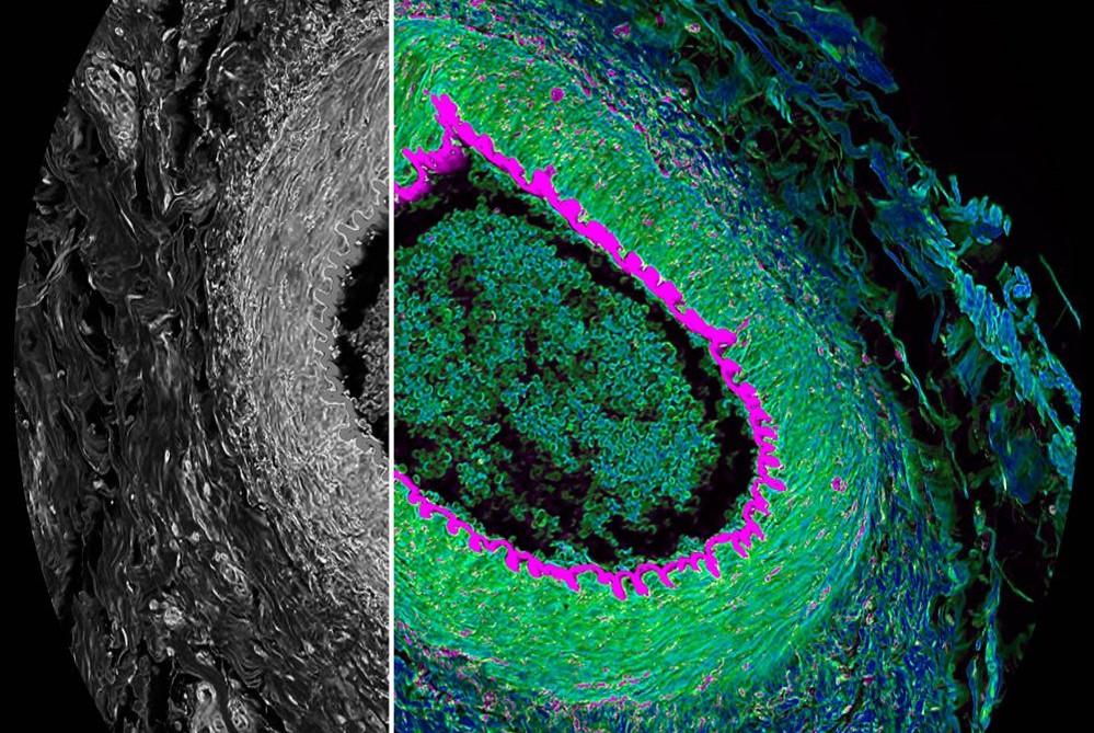 タイムゲーティング技術を使いこなす―ココが知りたい!共焦点顕微鏡ガイドブック
