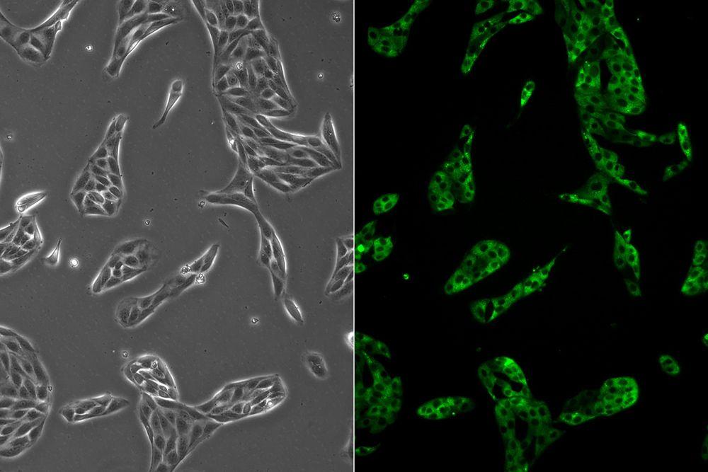 細胞培養/コンフルエントに逹することなく培養細胞をタイミングよく継代したい