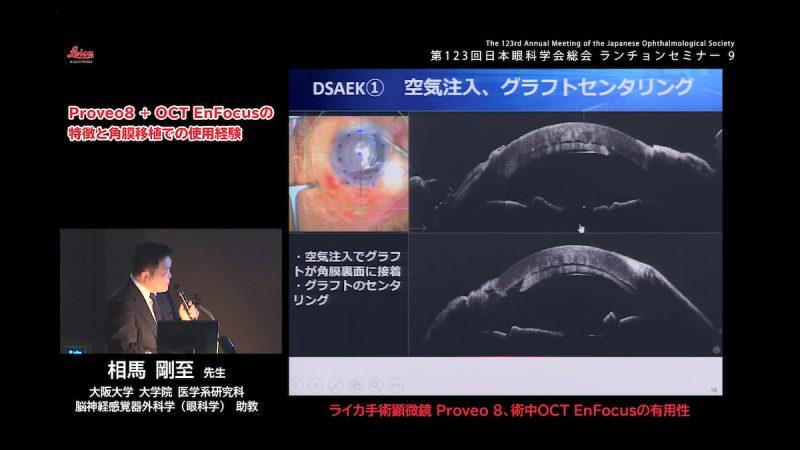 大阪大学 大学院 眼科チームによる日本眼科学会共催ランチョンセミナー/眼科手術顕微鏡Proveo8と術中OCT EnFocusの使用経験