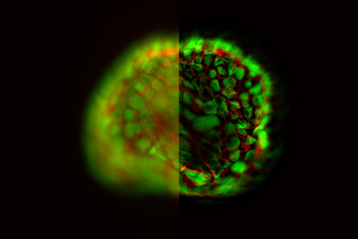 モデル生物 オルガノイド 超高精細蛍光顕微鏡観察