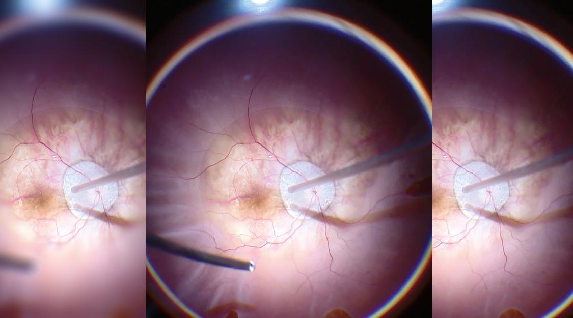 眼科手術顕微鏡