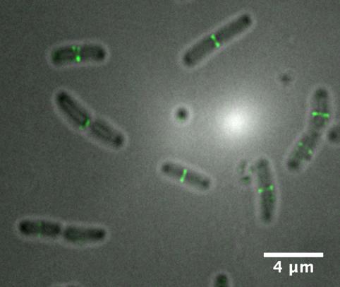 超解像蛍光顕微鏡活用事例