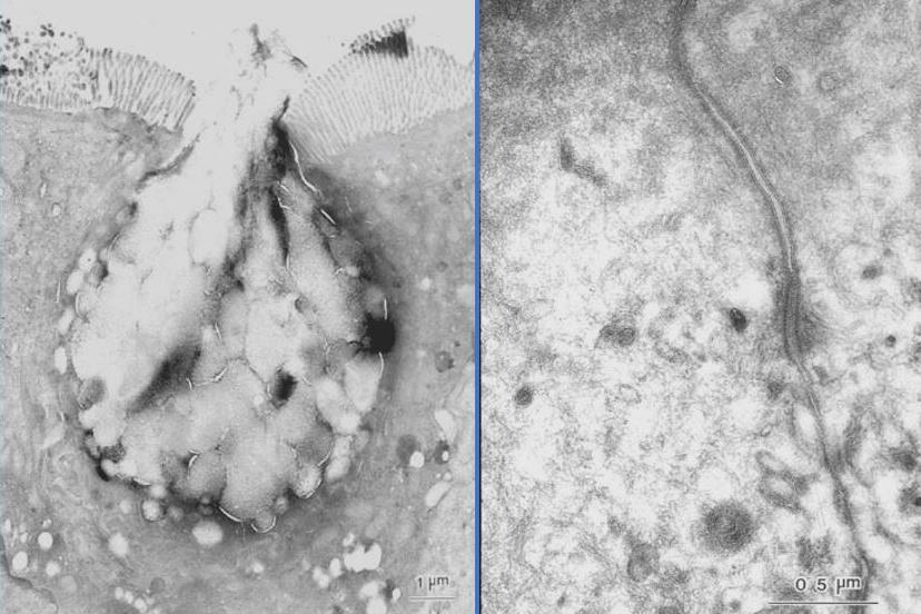 (申込受付終了)クライオ電顕試料作製ワークショップ & ABiS 電子顕微鏡トレーニング – 第8回(平成30年度第2回)